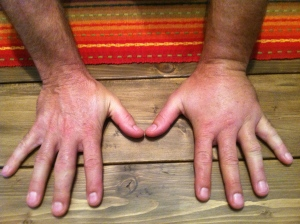 One yellow jacket sting to my left hand and one on my right knee - pictured below.